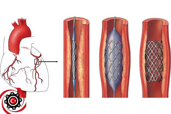 عملية قسطرة القلب