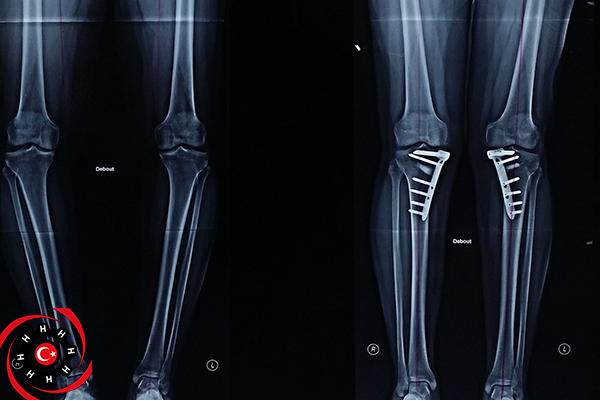 تشوهات العظام
