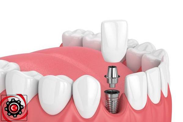 اسئلة عن زراعة الاسنان