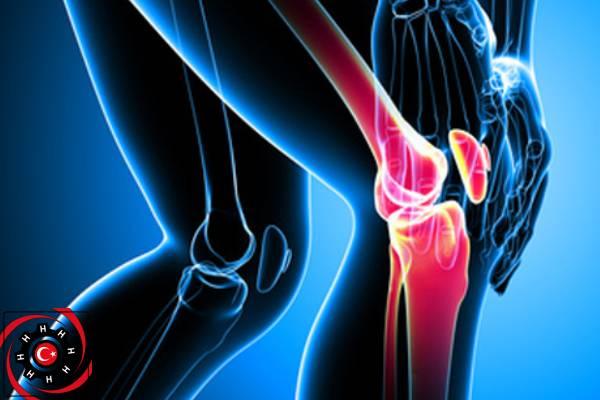 اسئلة عن استبدال مفصل الركبة