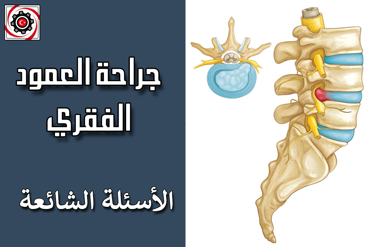 FAQ-spine-surgery