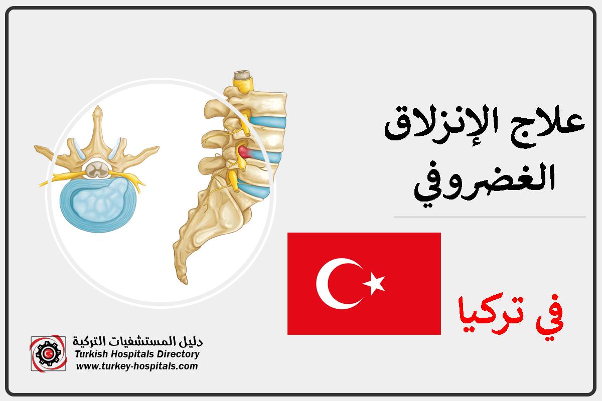 علاج الانزلاق الغضروفي في تركيا